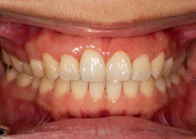 Healthy gums with a pink colour and no sign of bleeding or swelling. These teeth have not incurred any loss of gum or bone attachment. The teeth are firm with no mobility.