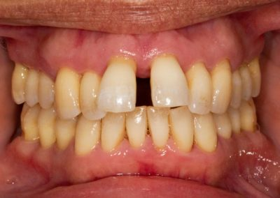 Periodontitis has resulted in the recession of gum around multiple teeth. The loss of bone and gum support around the teeth has led to drifting away from their original position. Large gaps are appearing between teeth.