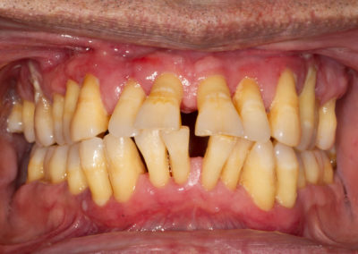 Here we see the gums appearing extremely swollen and the progressive loss of bone around the teeth has resulted in significant displacement and drifting of the teeth. Teeth are beginning to develop painful abscesses and have become considerably loose.